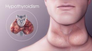Hypothyroidism final